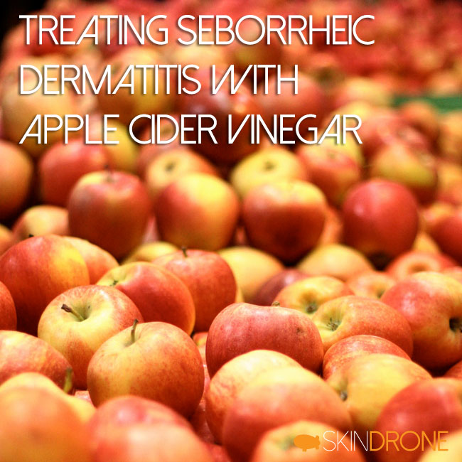 Treating Seborrheic Dermatitis with Apple Cider Vinegar Cover Photo