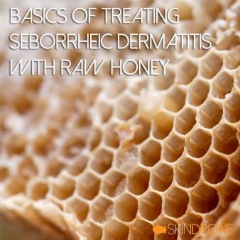 Basics of Treating Seborrheic Dermatitis with Raw Honey Cover Photo