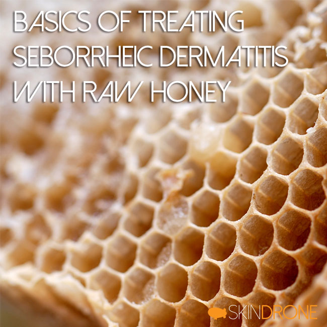 Basics of Treating Seborrheic Dermatitis with Raw Honey Cover Photo