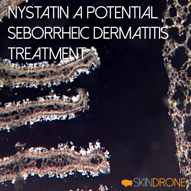 Nystatin A Potential Seborrheic Dermatitis Treatment Cover Photo