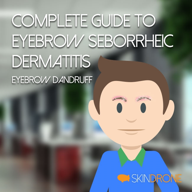 Complete Guide to Dealing with Seborrheic Dermatitis of the Eyebrows (aka Eyebrow Dandruff) Cover Photo