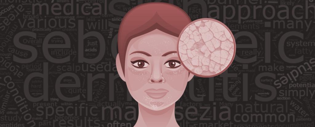 What is Seborrheic Dermatitis Cover Photo
