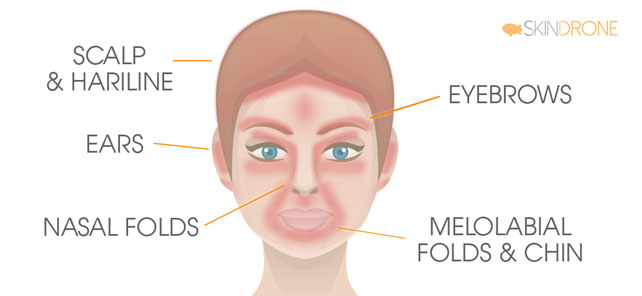 Facial Areas Most Commonly Affected by Seborrheic Dermatitis