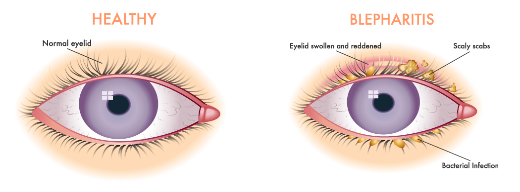 Illustration comparing a healthy eyelid to one that is affected by seborrheic dermatitis or more precisely seborrheic blepharitis.