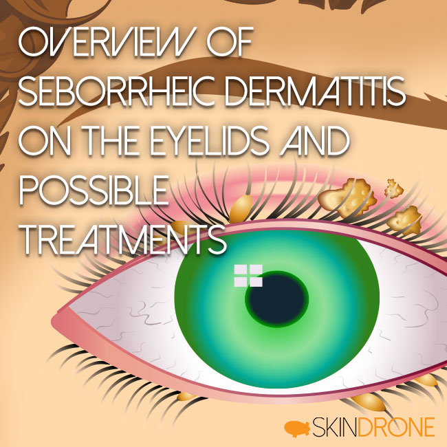Cover Image for Overview of Seborrheic Dermatitis Treatments of the Eyelids and Possible Treatments