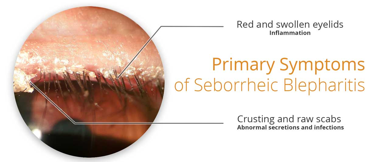 Image showing the primary symptooms of seborrheic dermatitis of the eyelids (properly known as seborrheic blepharitis).
