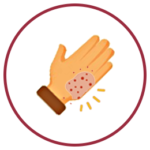 Emblem for Skin Support Module - Reducing Exposure to Known Irritants for Skin Health
