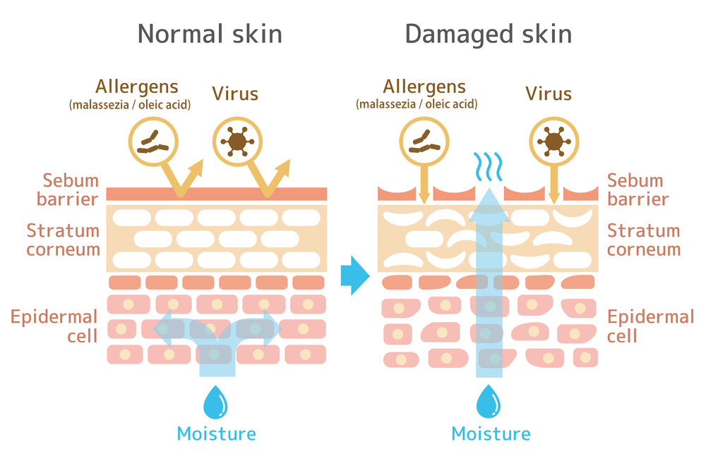 Difference between health skin and skin affected by seborrheic dermatitis or dandruff
