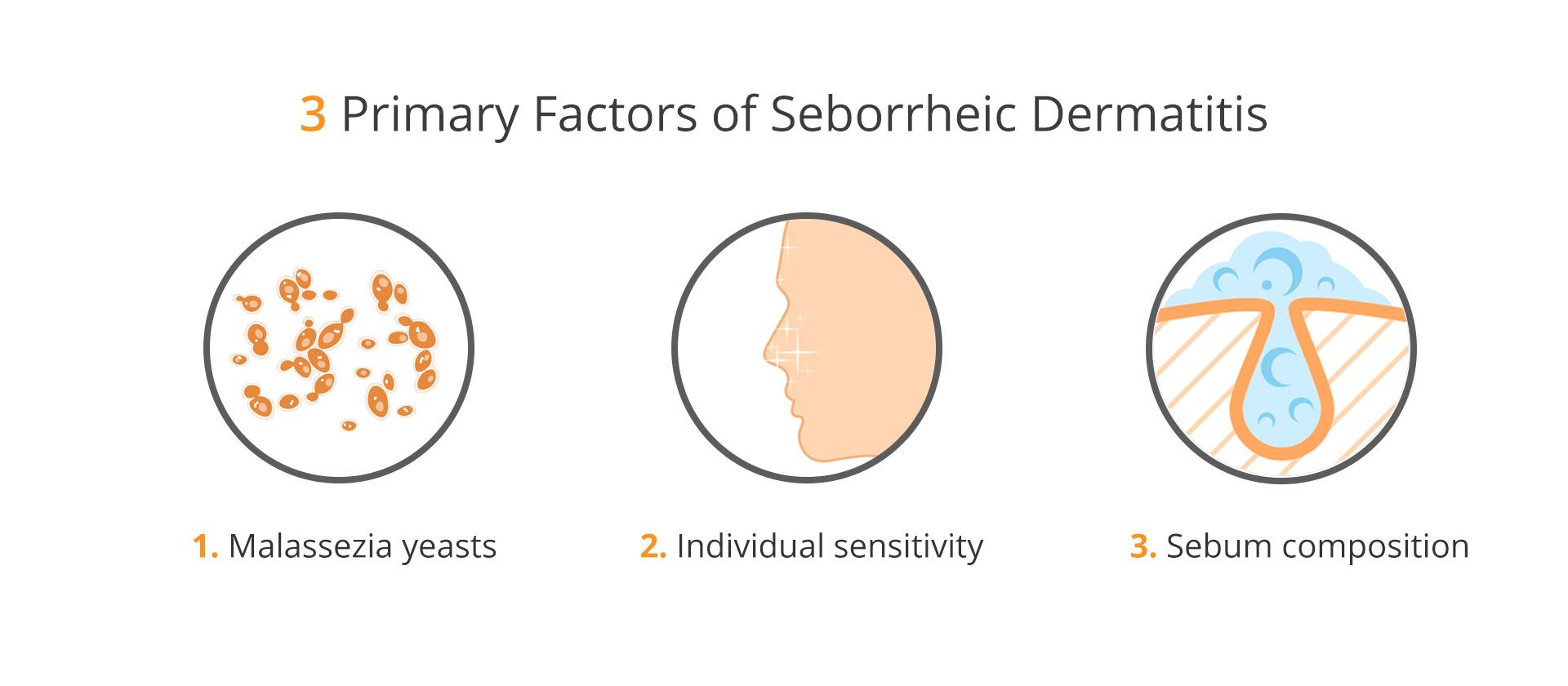 A visual representation of the 3 primary factors of seborrheic dermatitis (malassezia yeasts, individual sensitivity, and sebum composition)