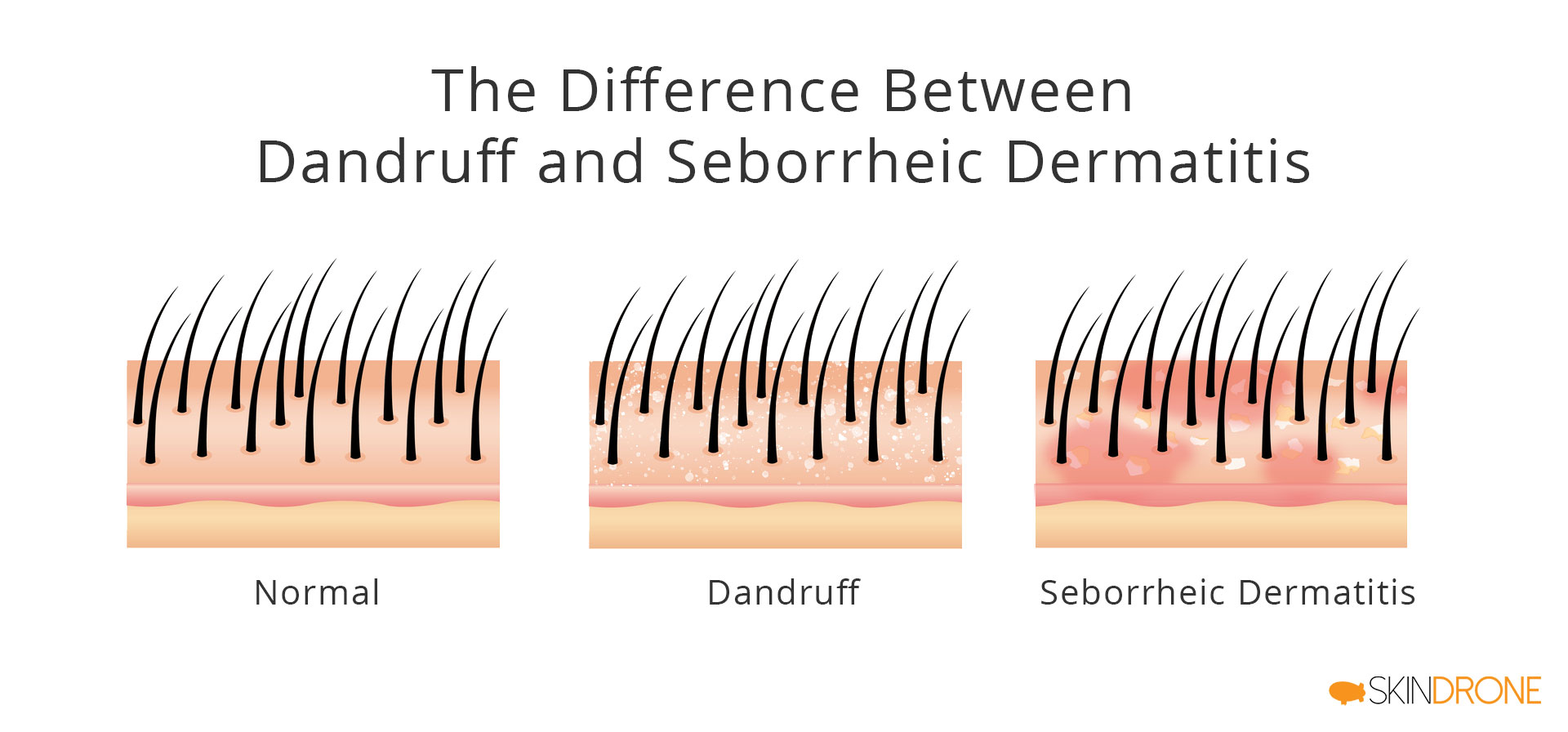 Visual representation of key differences between dandruff and seborrheic dermatitis