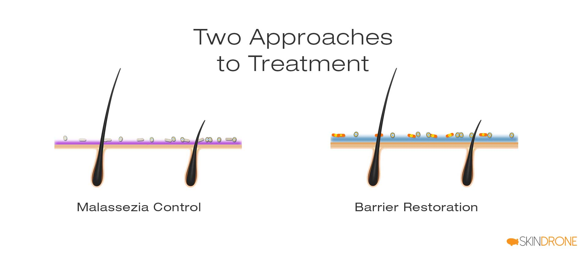 Two primary treatment approaches to scalp seborrheic dermatitis - malassezia control and barrier restoration