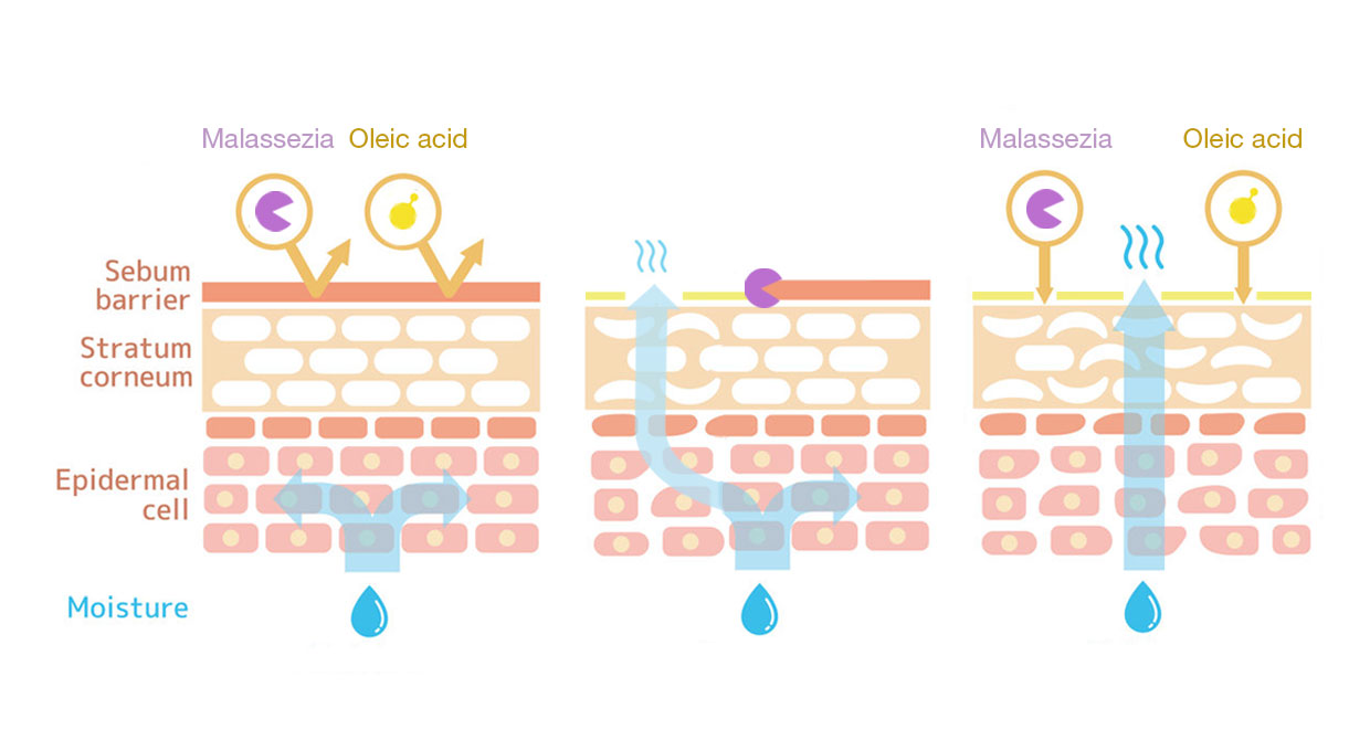 Diagram of how malassezia degrade the sebum layer and irritate the skin