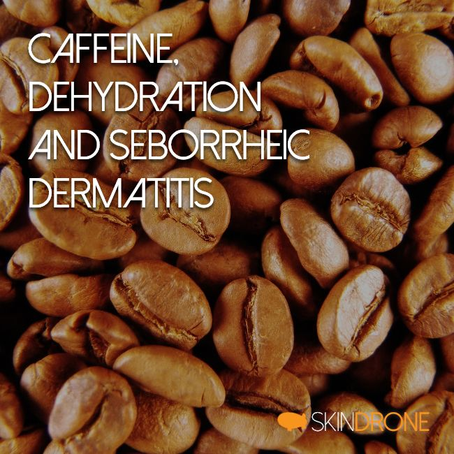 Cover image for the article discussing the potential effect of caffeine on seborrheic dermatitis symptoms - text on background of coffee beans